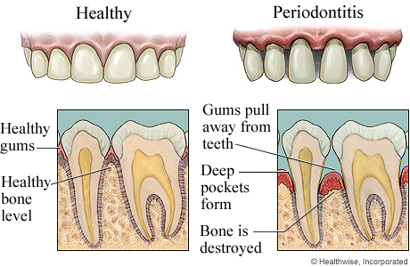 how to clean periodontal pockets