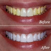 Tooth Whitening Fleming Family Dental